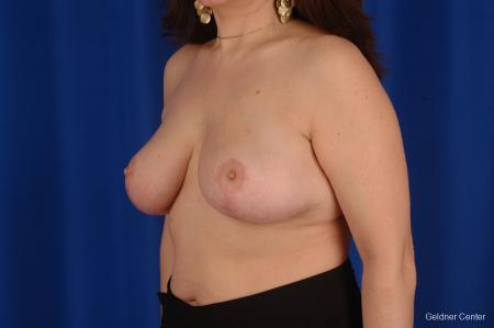 Breast Reduction Streeterville, Chicago 2289 -  After Image 4