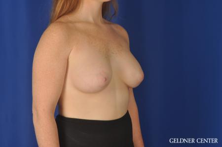Breast Augmentation Streeterville, Chicago 11870 -  After Image 2