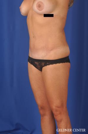 Liposuction: Patient 39 - After Image 2