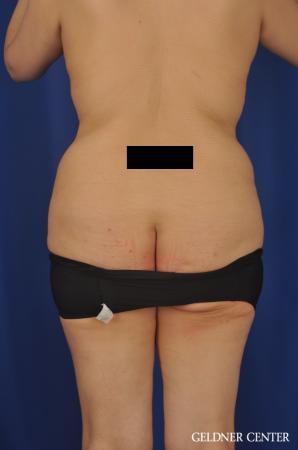 Lipoabdominoplasty: Patient 7 - Before Image 4