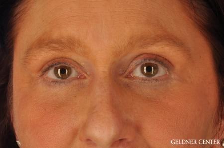 Brow Lift: Patient 4 - After Image 4