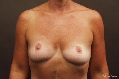 Chicago Breast Augmentation 2524 - Before Image 1