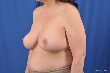 Breast Reduction: Patient 29 - After Image 4