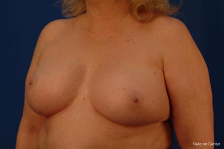 Complex Breast Augmentation Hinsdale, Chicago 2430 -  After Image 4