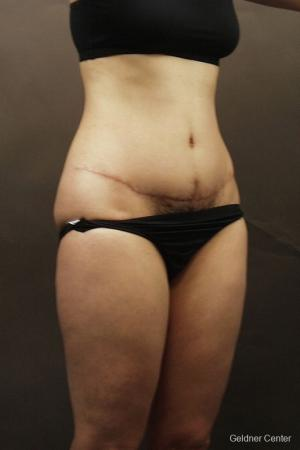 Liposuction: Patient 8 - Before Image 2