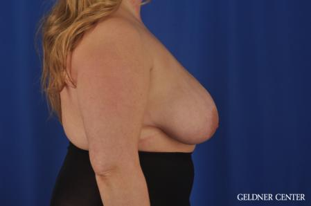 Breast Reduction: Patient 32 - Before Image 3