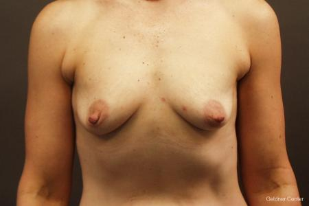Breast Augmentation Hinsdale, Chicago 2632 - Before Image 1