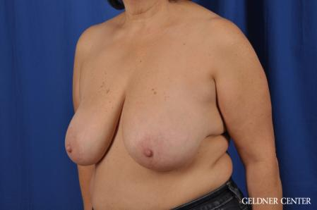 Breast Reduction: Patient 31 - Before and After Image 4