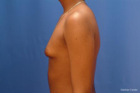 Gynecomastia: Patient 5 - Before Image 4