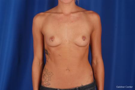 Chicago Breast Augmentation 2328 - Before Image 1