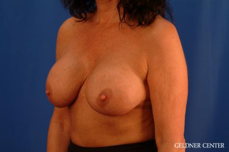 Chicago Breast Lift 2617 - Before and After Image 5