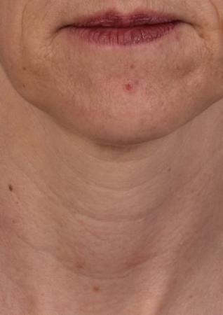 SkinPen®: Patient 11 - Before 1