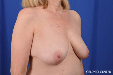 Breast Lift: Patient 51 - Before Image 2