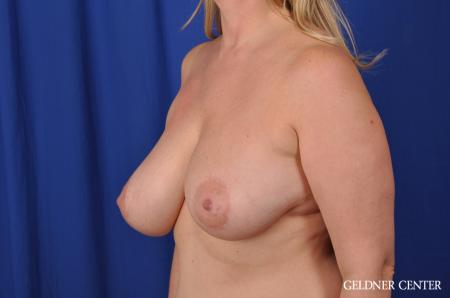 Breast Lift Streeterville, Chicago 8754 - Before and After Image 4