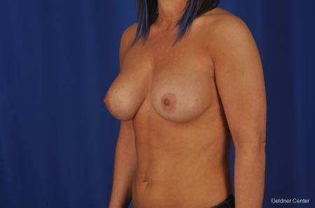 Chicago Complex Breast Augmentation 2336 -  After Image 5