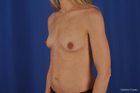 Chicago Breast Augmentation 6653 - Before and After Image 4