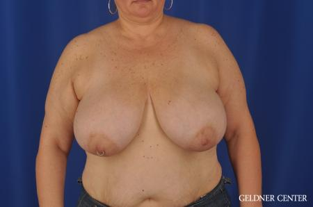 Breast Reduction Lake Shore Dr, Chicago 3223 - Before Image