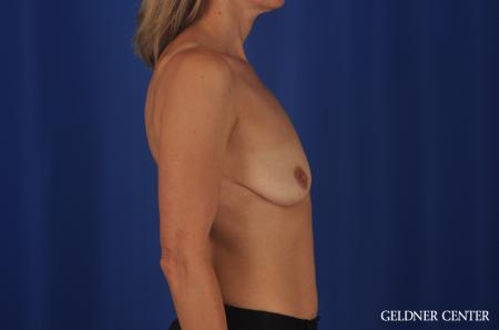 Breast Augmentation Lake Shore Dr, Chicago 8748 - Before Image 2