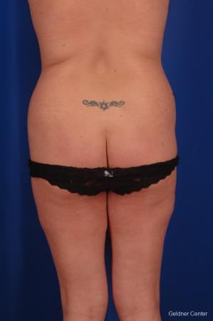 Lipoabdominoplasty: Patient 1 - Before and After Image 3