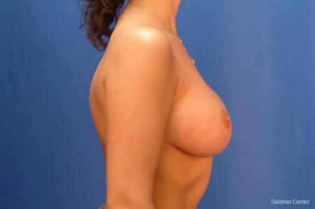 Chicago Breast Augmentation 2432 -  After Image 2