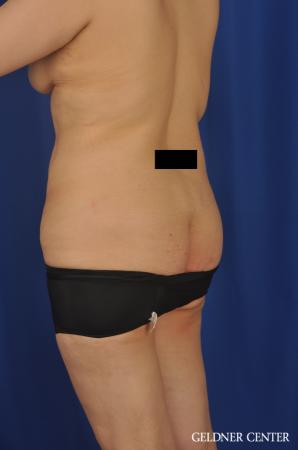 Liposuction: Patient 31 - Before and After Image 5