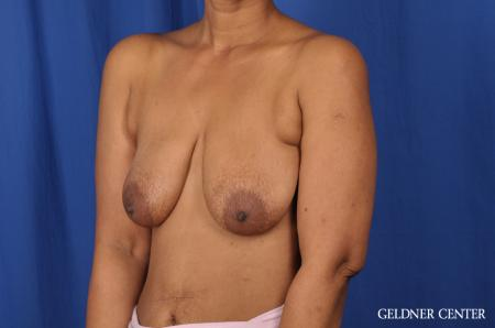 Breast Lift: Patient 38 - Before and After Image 4