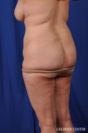 Lipoabdominoplasty: Patient 6 - Before and After Image 5