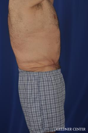 Abdominoplasty For Men: Patient 3 - After Image 3