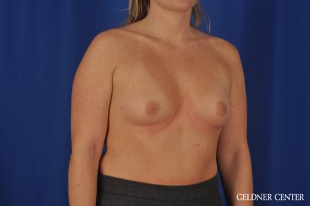Breast Augmentation: Patient 184 - Before Image 2