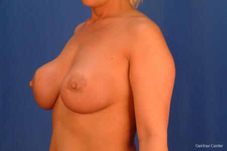 Complex Breast Augmentation Streeterville, Chicago 2428 - Before and After Image 4