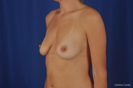 Chicago Breast Augmentation 2374 - Before and After Image 4