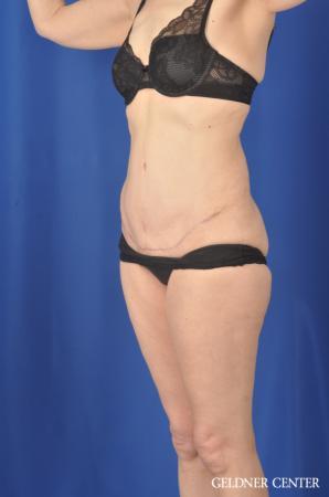 Liposuction: Patient 33 - After 5