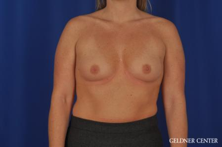 Breast Augmentation: Patient 184 - Before Image 1