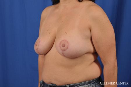 Breast Reduction: Patient 31 - After Image 4