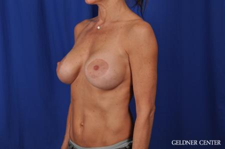 Chicago Complex Breast Augmentation 5471 -  After Image 4