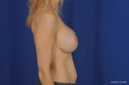 Breast Augmentation Lake Shore Dr, Chicago 2309 -  After Image 2