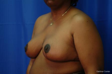 Chicago Breast Reduction 2406 -  After Image 4