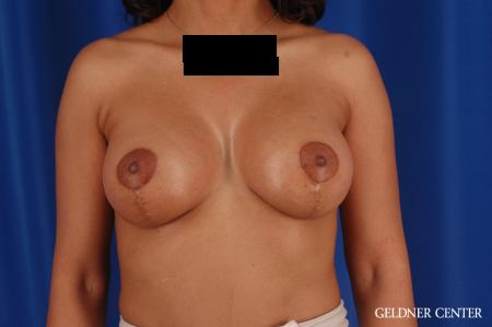 Breast Augmentation: Patient 183 - After Image 1