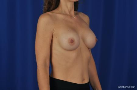 Chicago Breast Augmentation Natrelle Smooth Gel Implants 2067 -  After Image 3