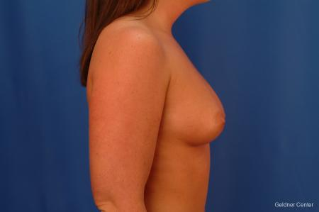 Chicago Breast Augmentation 2636 - Before Image 2