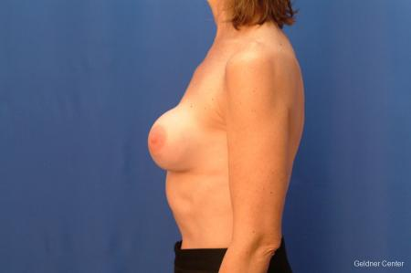 Chicago Complex Breast Augmentation 2445 - Before Image 3