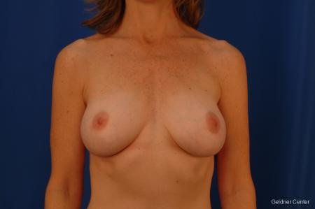 Chicago Complex Breast Augmentation 2445 -  After Image 1