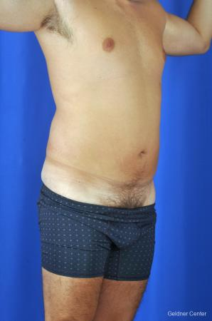 Liposuction For Men: Patient 4 - Before Image 2