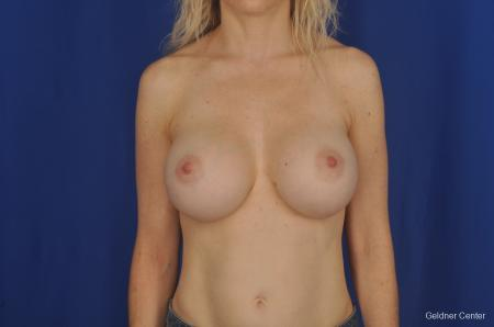 Breast Augmentation Lake Shore Dr, Chicago 2309 -  After Image 1