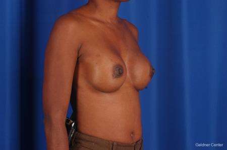 Chicago Breast Augmentation 2293 -  After Image 3