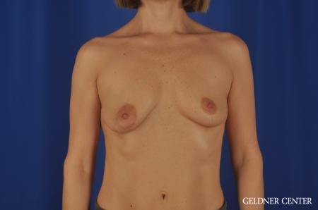 Breast Lift Lake Shore Dr, Chicago 6649 - Before Image 1