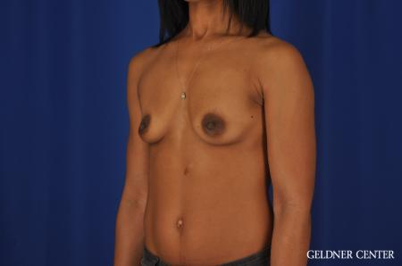 Chicago Breast Augmentation 4291 - Before and After Image 4
