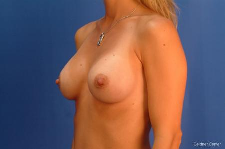 Breast Augmentation Hinsdale, Chicago 2510 -  After Image 4