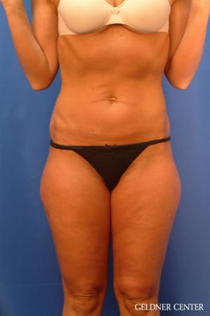 Vaser lipo patient 2624 before and after photos - Before Image
