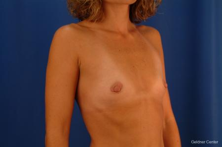 Chicago Breast Augmentation 2442 - Before Image 3
